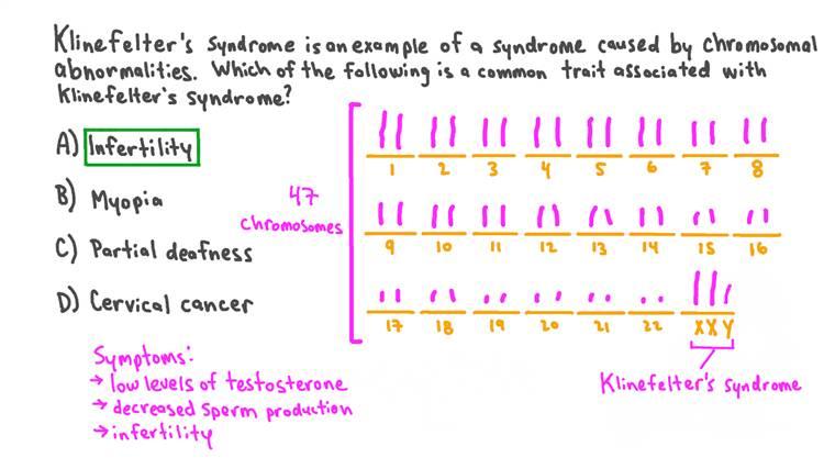 Identifier les caractéristiques associées au syndrome de Klinefelter